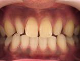 矮小歯(わいしょうし)