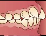 出っ歯(上顎前突じょうがくぜんとつ)