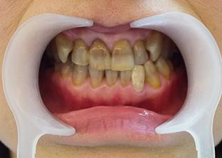 テトラサイクリン歯ケース3