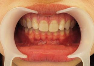 テトラサイクリン歯ケース2