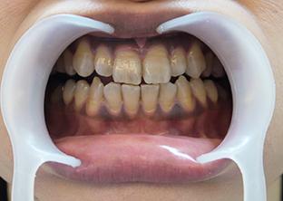 テトラサイクリン歯ケース1